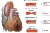 Epidemiología del síndrome coronario agudo en España: estimación del número de casos y la tendencia de 2005 a 2049