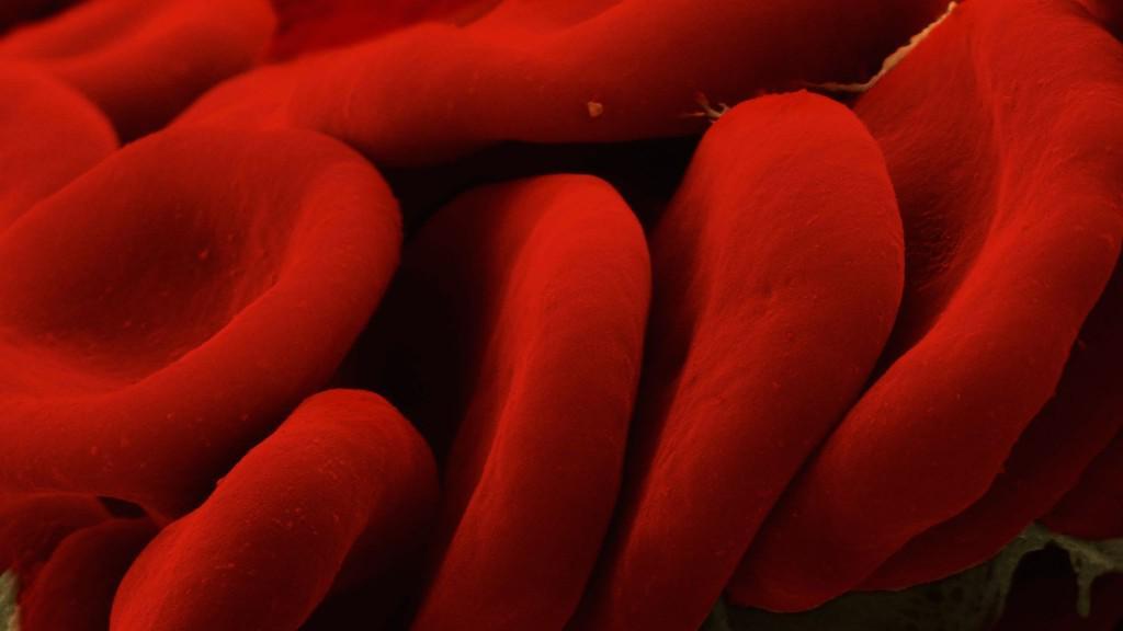 Premiers résultats de l'observatoire GIHP-NACO des hémorragies sous anticoagulants