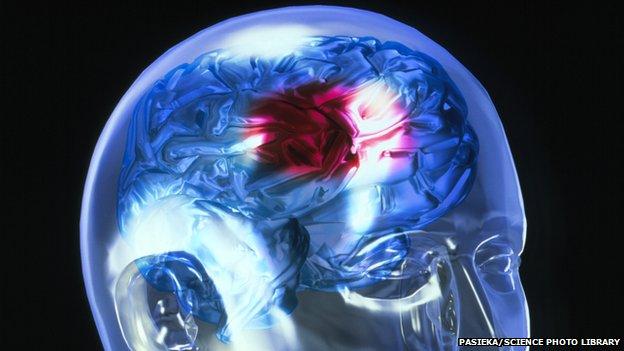Le biomarqueur pour guider la décision médicale