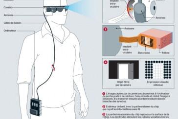 France: l'oeil bionique va redonner une vue partielle