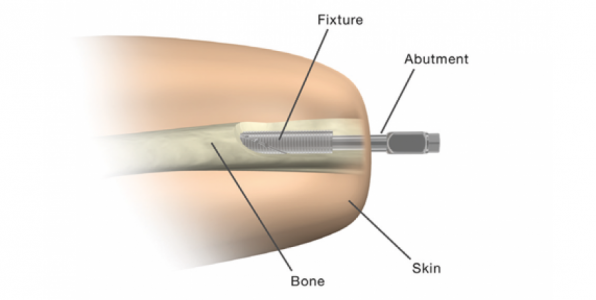 Amputation : une prothèse révolutionnaire