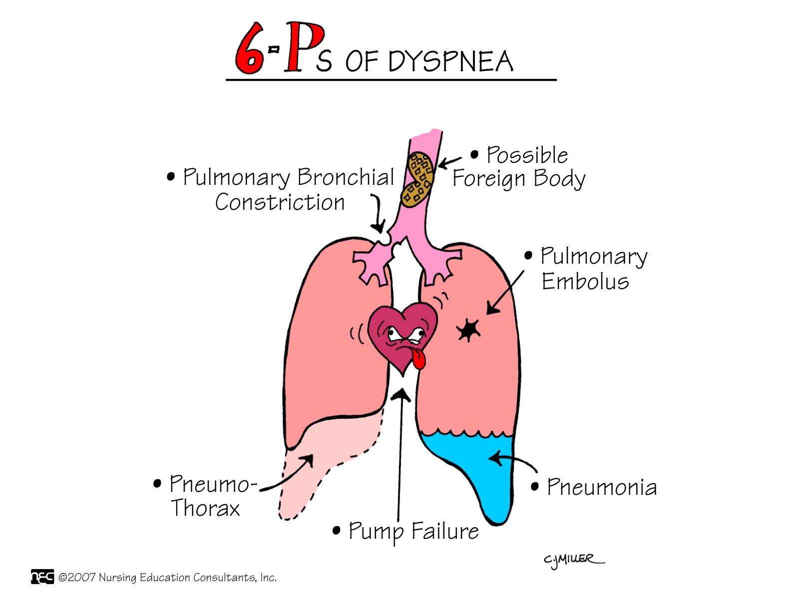 Noções de Emergências Médicas: Dispneia – Manual INEM