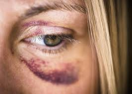 Services d'urgence aux femmes victimes de violences