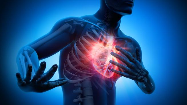 Arrêt cardiaque: quels sont les signes avant-coureurs?
