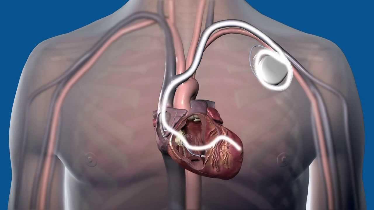 AGOTAMIENTO PREMATURO DE LA BATERÍA – Aviso médico global para un subconjunto de dispositivos DCI y CRT-D