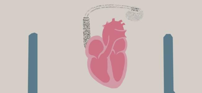 Sperimentato a Los Angeles il pacemaker biologico