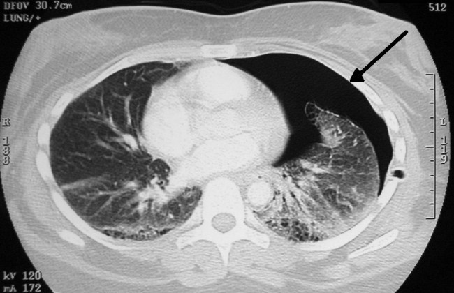 Pneumothorax_CT