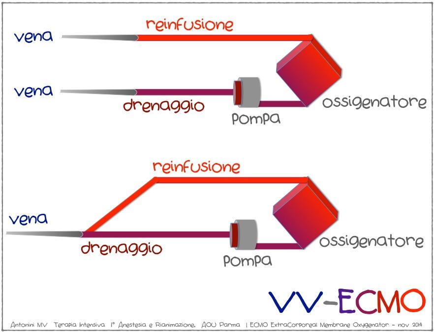 VV-ECMO