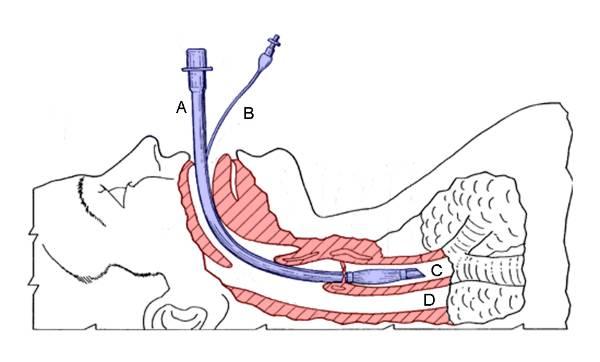 L'intubazione orotracheale ed i farmaci di induzione e mantenimento
