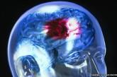 Trombolisi sistemica endovenosa: da EMpills un'esperienza da approfondire per la prevenzione dell'ictus