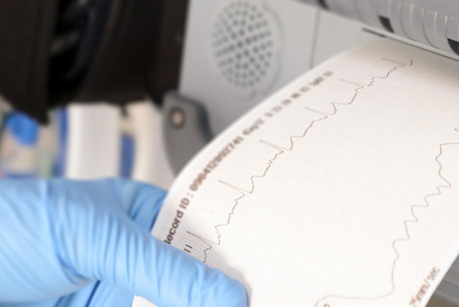 Linee guida per la diagnosi e la terapia della fibrillazione atriale [Open Access]