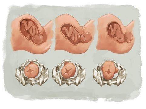 Il parto in emergenza, cosa fare? Ospedalizzazione e situazioni critiche
