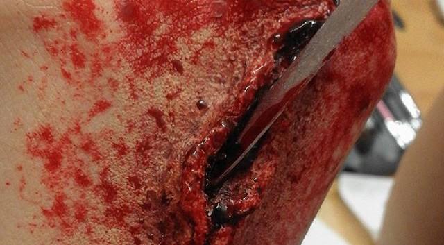 inguine_sangue