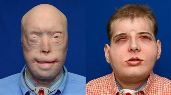 Ustioni, il primo trapianto di volto al mondo con l'utilizzo di una stampante 3D | Emergency Live 8