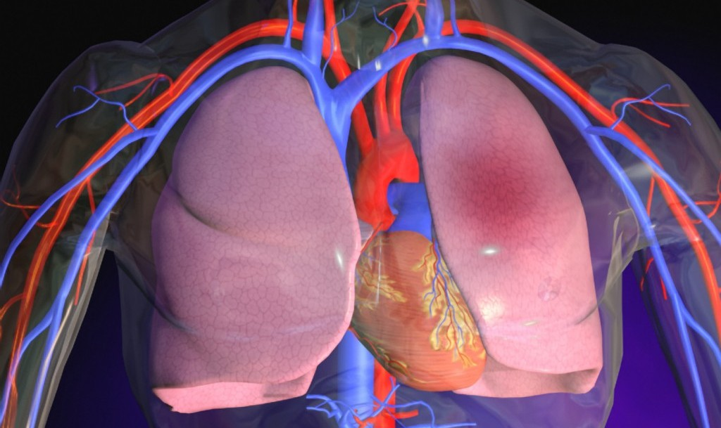 Embolia polmonare: cosè, cosa fare e come agire in caso di paziente con embolo