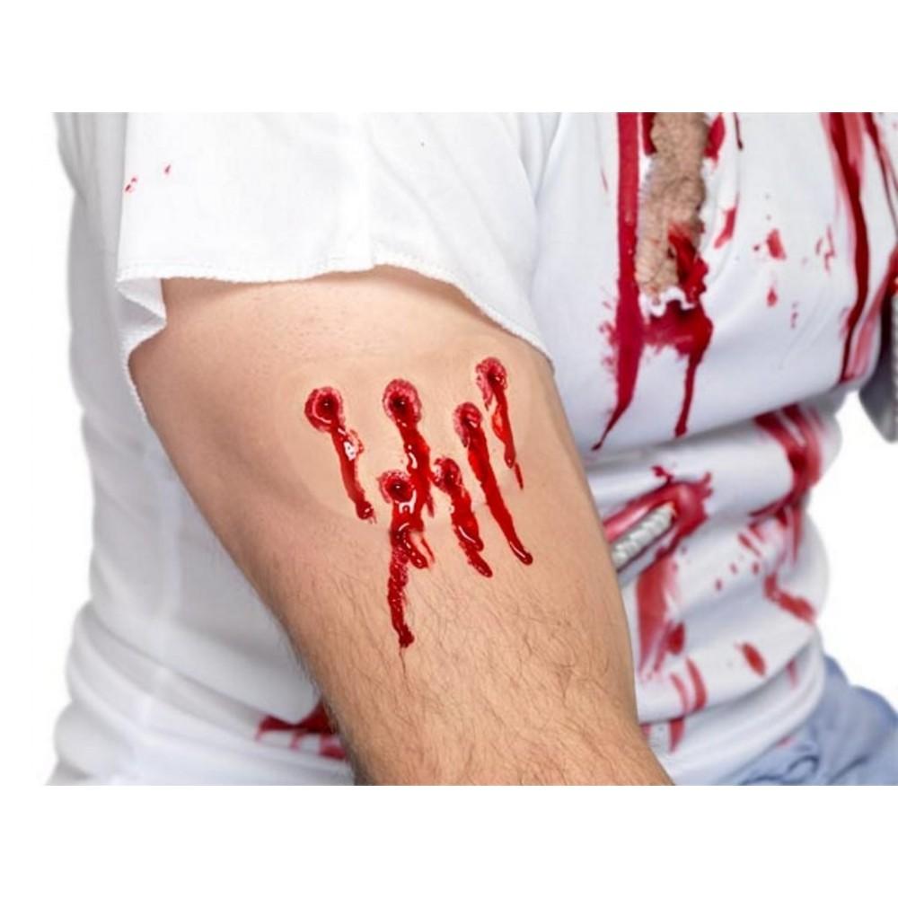 TSSA – comportamento con ferite, emorragie, lesioni da caldo e da freddo