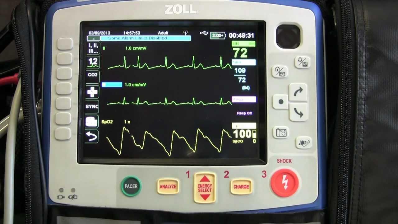 Trasmissione ECG: si, ma con che cosa?