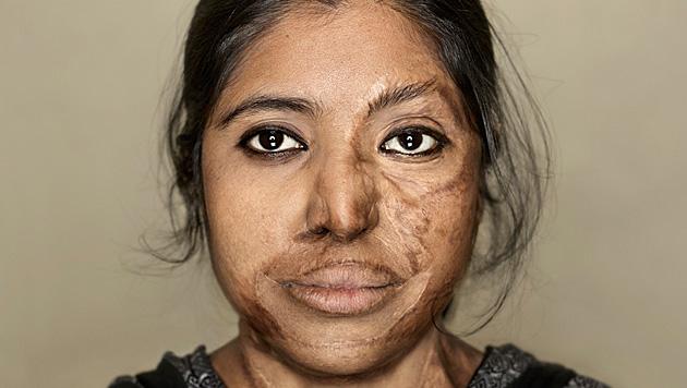 vittime-attacchi-acido-bangladesh-9