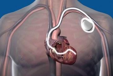Pacemaker e defibrillatori interni, esaurimento prematuro della batteria: cosa c'è da sapere?