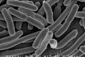 Abbiamo un grosso problema con i batteri, e questa sarà l'emergenza sanitaria del futuro