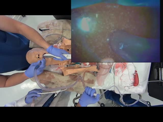 suction-catheter-bougie-delivery-matt-anderson_dvd.original