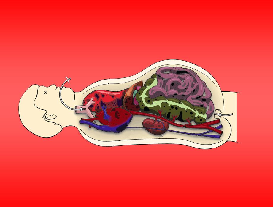 Riconoscimento, valutazione e trattamento dell'ipertensione addominale: un ripasso