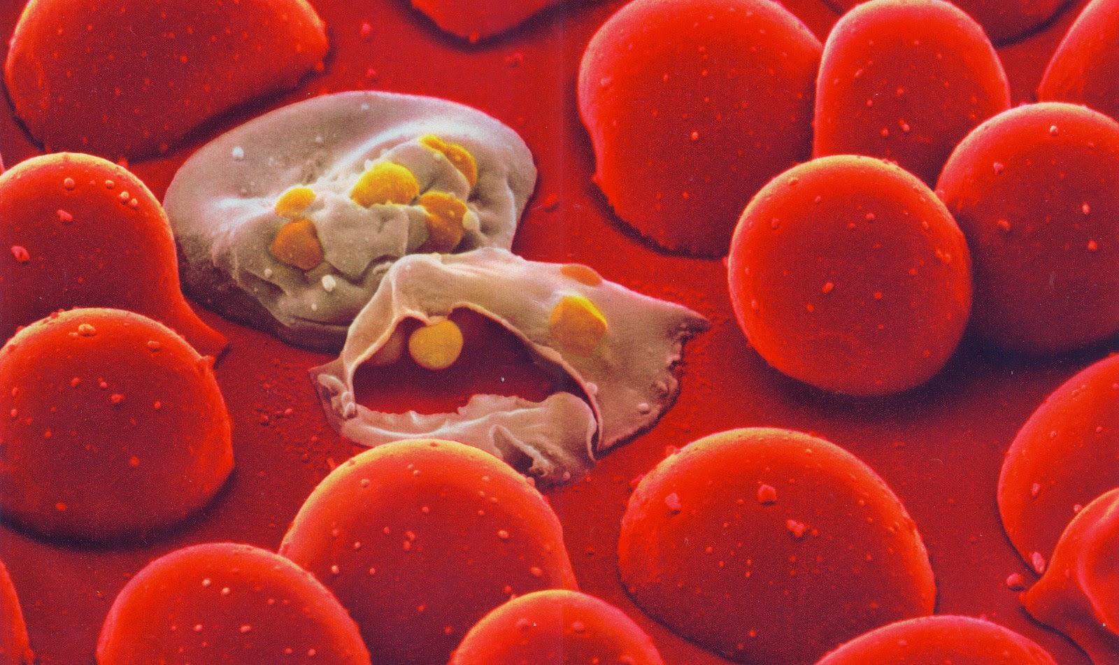 Le analisi confermano i sospetti: 4 immigrati sono malati di malaria