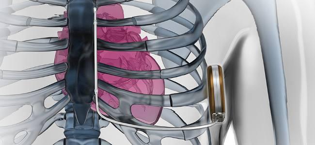 20140715121152-glassman_defibrillator