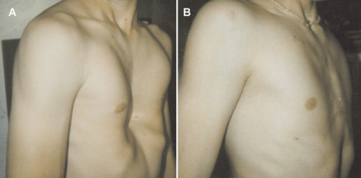 CPR in pectus excavatum patients: Is it time to say more?