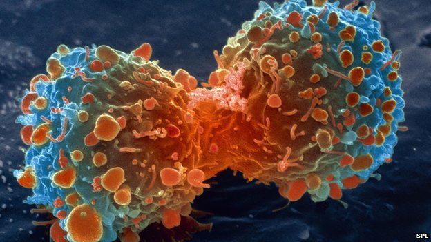 -lung_cancer_cell_d