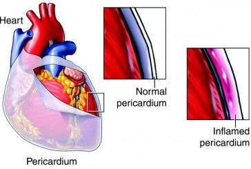 Pericarditis, how to diagnose it