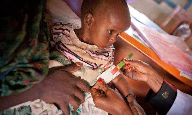 An estimated 14,000 children suffering from severe acute malnutrition