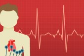 Preventing cardiac deaths in US: what about young non-athletes?
