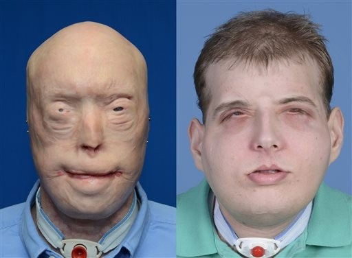 Emergency Live | Patrick Hardison, the story of a transplanted face on a firefighter with burns image 4