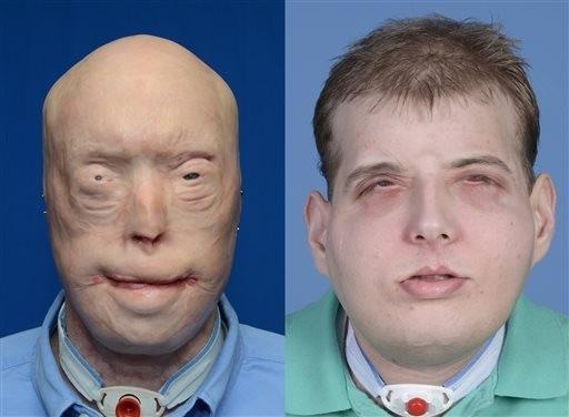 Emergency Live | Patrick Hardison, a história de um rosto transplantado em um bombeiro com queimaduras imagem 4