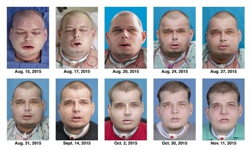 Patrick Hardison, the story of a transplanted face on a firefighter with burns