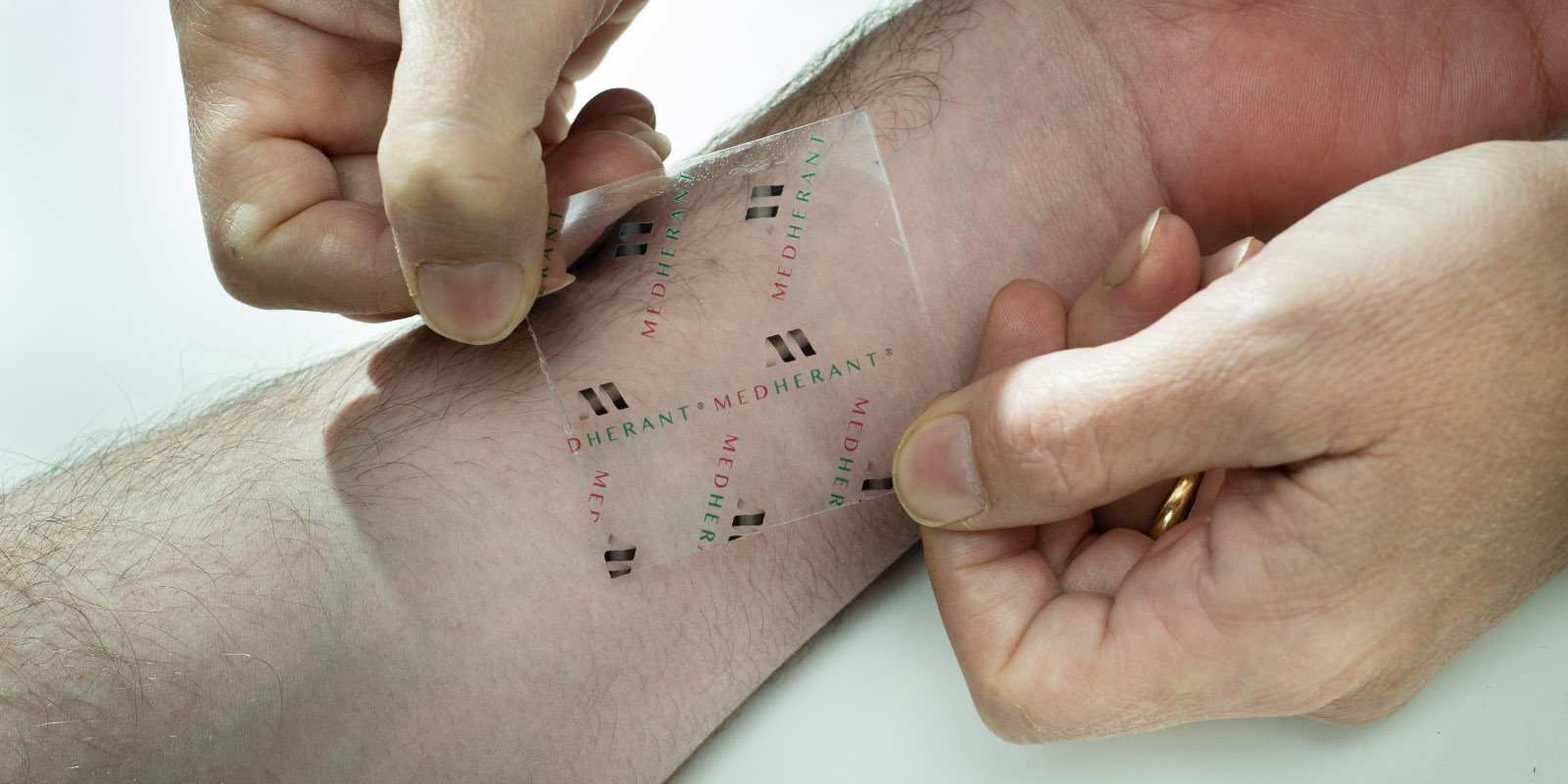 Ibuprofen Patch, a new idea that can reduce Pain for 12 Hours
