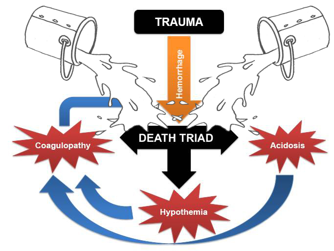 Fluid resuscitation in bleeding trauma patient: are you aware of wich is the right fluid and the right strategy?