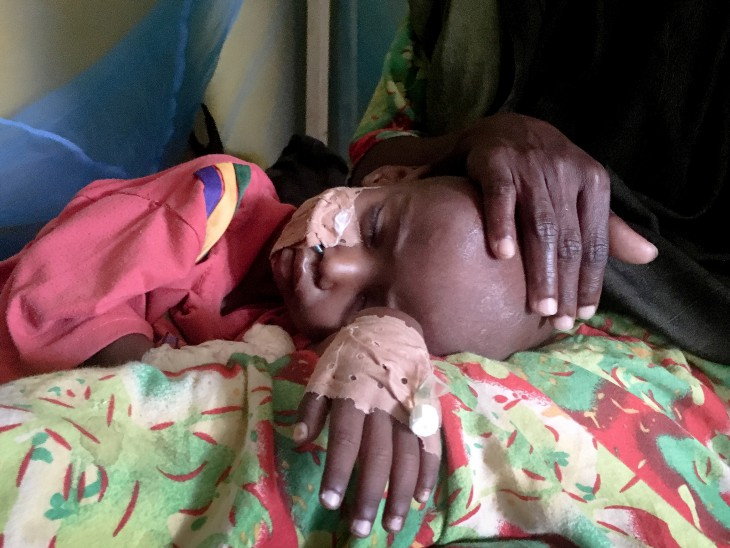 Somalia: Rising malnutrition is overwhelming nutrition centres