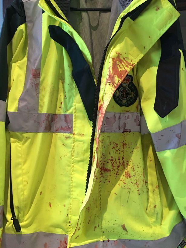 tony's blood-soaked uniform