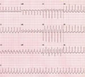 kokie vaistai nuo hipertenzijos ir aritmijos