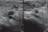DVT ultrasound fails too – Is it enought to detect real desease?