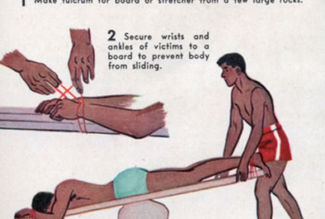 Story of CPR: the contribution of Dr. Eve's Method of Artificial Resuscitation