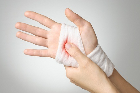 Stop bleeding techniques tought to the public to increase emergency care awareness