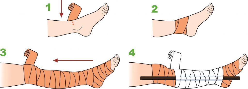 bandage snake bite